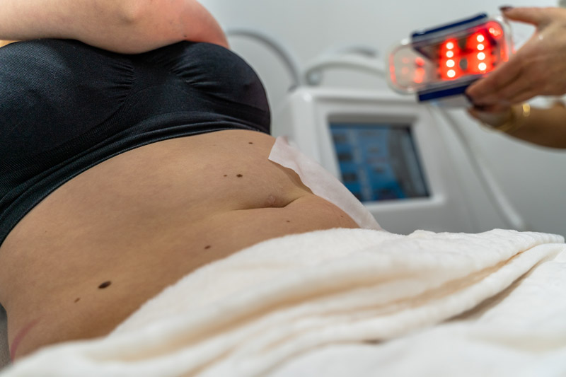 Cryolipolyse behandeling - Lipo Beauty